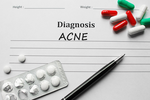 How to get rid of bacne. How to prevent back acne. How to get rid of bacne scars.